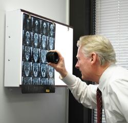 James S. Sorrels personal injury lawyer examining xrays